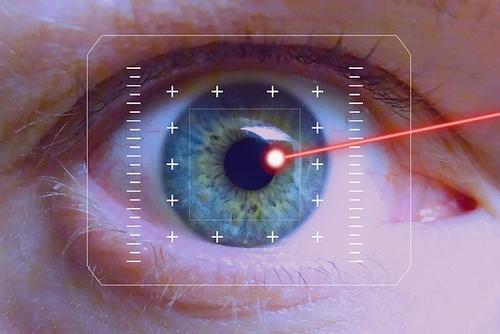 Akių korekcijos lazeriai: kas sugrąžina puikią regą?