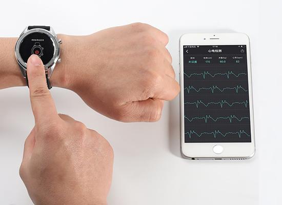 Lietuvoje – išmanusis laikrodis su elektrokardiogramos funkcija