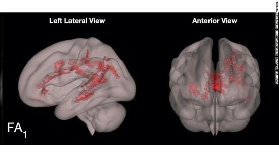 Smegenų nuotraukos / Sinsinačio vaikų ligoninės nuotr.