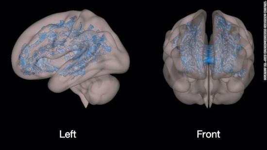 Vaikų smegenų nuotraukos / Sinsinačio vaikų ligoninės nuotr.