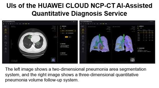 Kovoje su koronavirusu pasitelkiami dirbtinio intelekto sprendimai: padeda analizuoti plaučių nuotraukas