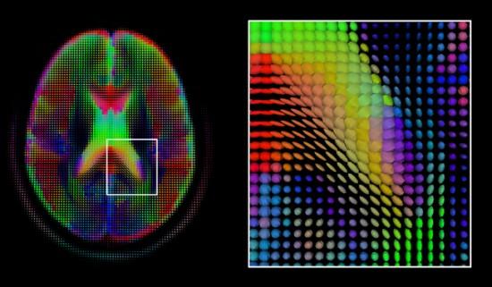 Mašininis mokymasis jau taikomas medicinoje, diagnostinėms nuotraukoms ir kitiems testams analizuoti