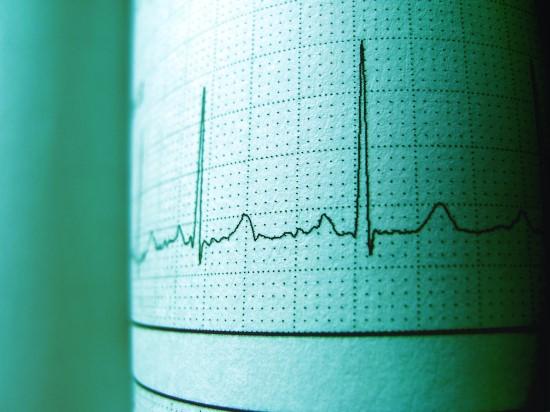 Mokslininkai sukūrė neinvazinį elektrolitų disbalanso kraujyje stebėsenos būdą